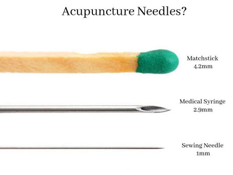 Never Fear! Acupuncture is here.