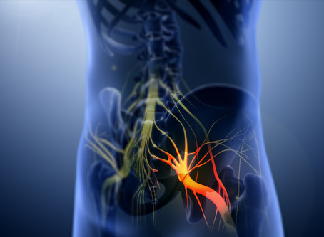 Sciatica:  What is it?