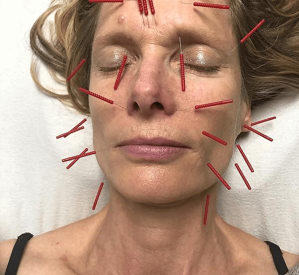 Acupuncture-Image