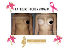 La reconstrucción mamaria