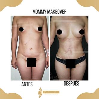 Mommy_Makeover.Dr_Mauricio_Garcia._Ciruj
