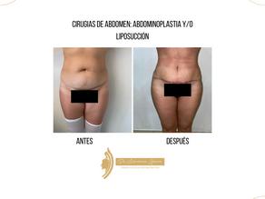 Cirugias de abdomen: abdominoplastía y/o liposucción