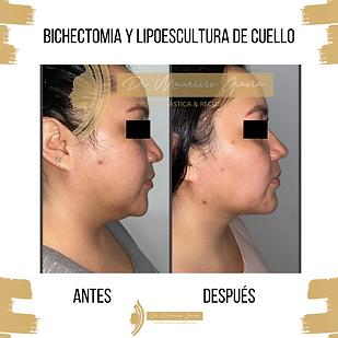 Bichectomia_y_Lipoescultura_de_cuello._D