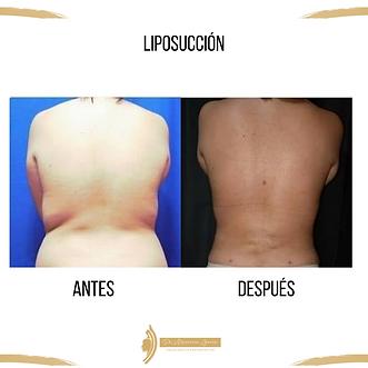 Liposucción.Dr_Mauricio_Garcia._Cirujan