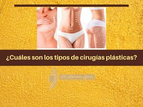 ¿Cuáles son los tipos de cirugías plásticas?