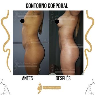 CONTORNO CORPORAL.png