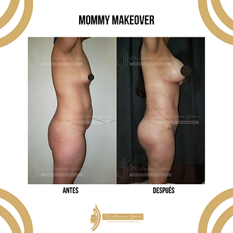 mommy makeover (4).png