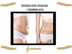 Diferencia entre liposucción y abdominoplastia