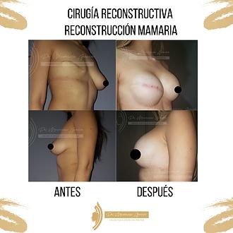 Cirugia_reconstructiva._Reconstrucción_