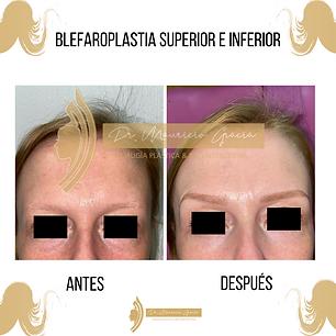 Blefaroplastia_supeior_e_inferior.Dr_Mau