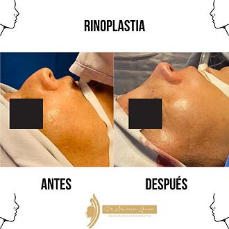 Diferencia entre la Rinoplastia y Septor