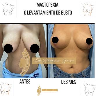 Mastopexia_o_Levantamiento_de_busto._Dr_