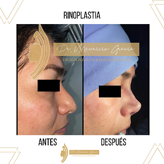 Rinoplastía._Dr_Mauricio_Garcia._Ciruja