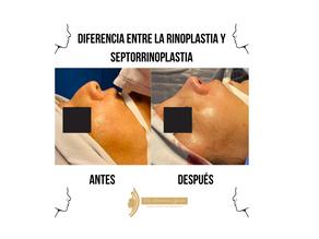Diferencia entre la Rinoplastia y Septorrinoplastia