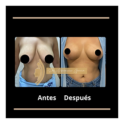 Antes (4).png