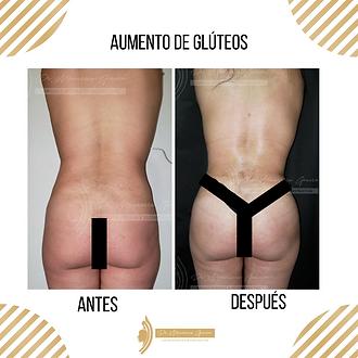 Aumento_de_gluteos._Dr_Mauricio_Garcia._
