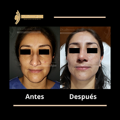 Antes (18).png