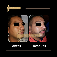 Antes (19).png