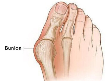 The Bane of Bunions