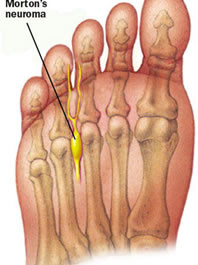 Morton's Neuroma? Suffering From Numb & Tingling Toes