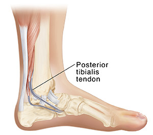 Posterior tibialis tendonitis