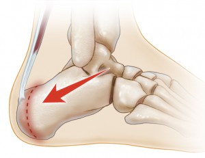 Sever's Syndrome - Kids Heel Pain is No Joke