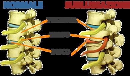 sublussazione vertebrale.png