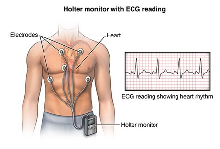 Literature Review: The History and Usage of Heart Rate Monitors in Human Factors