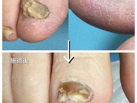 ご高齢の方の爪の変形の影響と室内履き