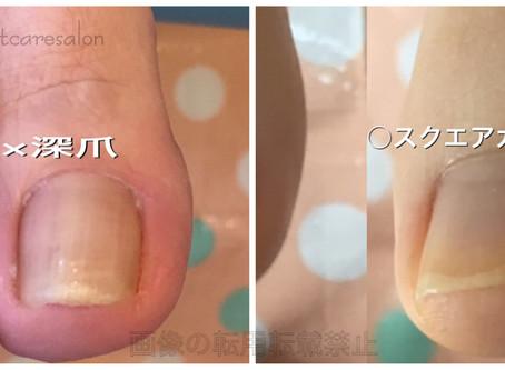 深爪により生じる様々な爪のトラブル