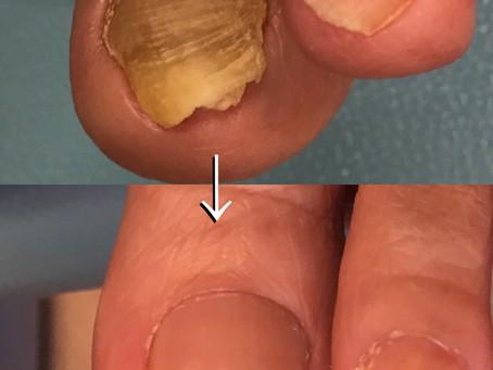 爪甲鉤彎症の爪の影響