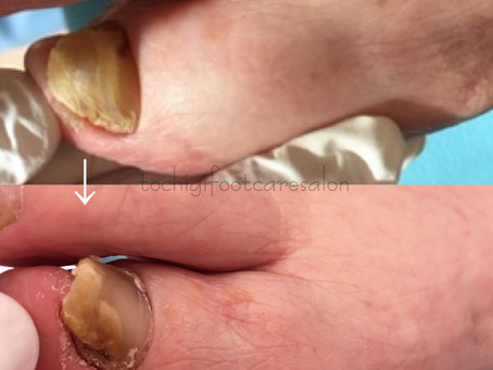 爪白癬webセミナー〜当店の厚くなった爪のケア〜