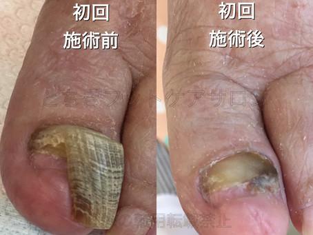 爪甲鉤彎症の経過〜定期的な爪ケアの重要性
