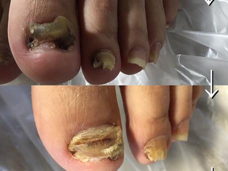 爪甲鉤彎症の経過