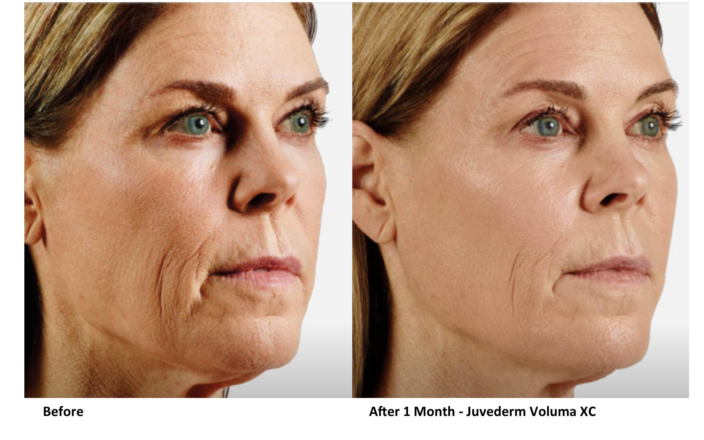 Dermal Filler Before & After