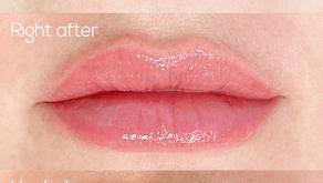 Como são os primeiros dias após a Dermopigmentação labial?