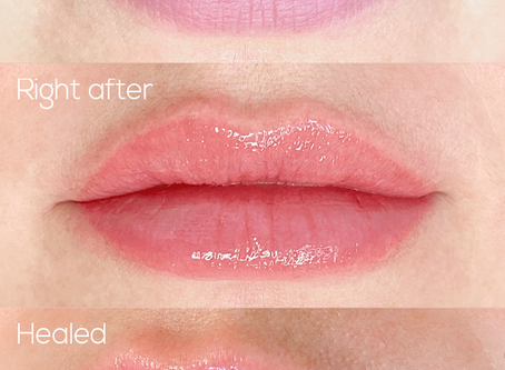How are the first days after lip dermopigmentation?