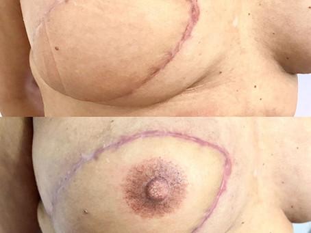 Micropigmentação gratuita para mulheres carentes