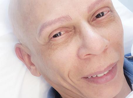 A eficácia da micropigmentação em homens com a autoestima abalada