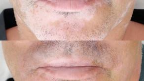 Vitiligo - Tudo sobre Camuflagem Vitiligo