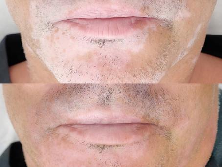 Vitiligo - All about Vitiligo Camouflage