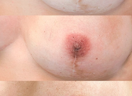 My first reconstructive dermopigmentation on a breast cancer survivor