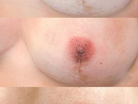 My first reconstructive dermopigmentation on a breast cancer survivor