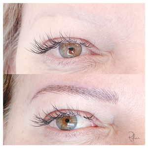 Dermopigmentation performed after 5 laser removal sessions