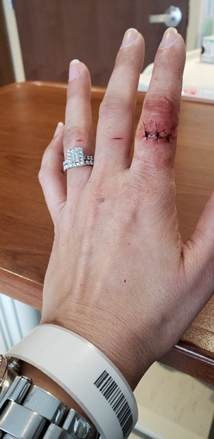This picture is of a stitches on a finger wound.