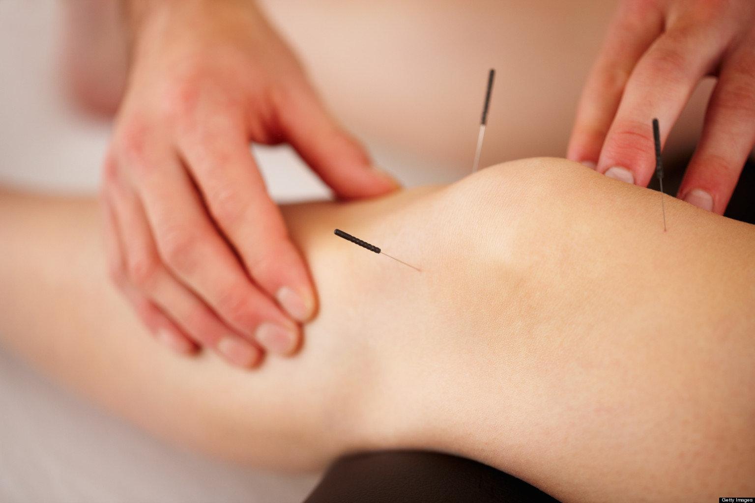 Acupuncture (Half Consult)