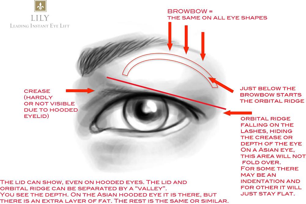 Hooded_Eye_Illustration_Lily_Leading_Instant_Eye_Lift.jpg