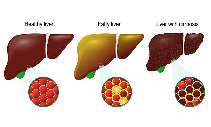 Fatty Liver Disease progression from normal liver to cirrhosis liver doctor, number 1 GI in New York, best doctor in Queens, top gastroenterologist Dr. David Tenembaum practicing in Queens, Jackson Heights, Crown, Crown of the North, Crown of the South, Elmhurst, East Elmhurst, Long Island City, Woodside, Sunnyside, Rego Park, Astoria, Astoria Heights, Steinway, Maspeth, Ridgewood, Glendale, College Point, Whitestone, Bayside, Middle Village, Kew Gardens, Richmond Hill, Woodhaven, Ozone Park, Jamaica, Jamaica Estates, Jamaica Hills, Queens Village, Lefrak City, Rosedale, Ravenswood and Forest Hills