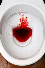 Oficina del Dr. David Tenembaum, clínica David Tenembaum, foto de sangre en heces, sangrado gastrointestinal, sangre en las heces, sangre en el recto, sangre en el papel higiénico, sangre en la orina, sangre roja brillante en el recto, causas de sangre en las heces, tratamiento de sangre en las heces, un top / mejor gastroenterólogo con base en Queens, Jackson Heights, Corona, North Corona, South Corona, Elmhurst, East Elmhurst, Long Island City, Woodside, Sunnyside, Rego Park, Astoria, Astoria Heights, Steinway, Maspeth, Ridgewood , Glendale, College Point, Whitestone, Bayside, Middle Village, Kew Gardens, Richmond Hill, Woodhaven, Ozone Park, Jamaica, Jamaica Estates, Jamaica Hills, Queens Village, Lefrak City, Rosedale, Ravenswood y Forest Hills Nueva York