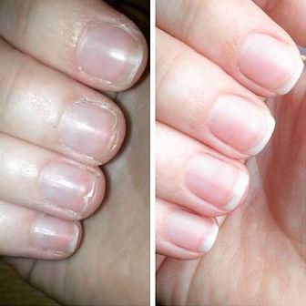 Nail Repair Treatment
